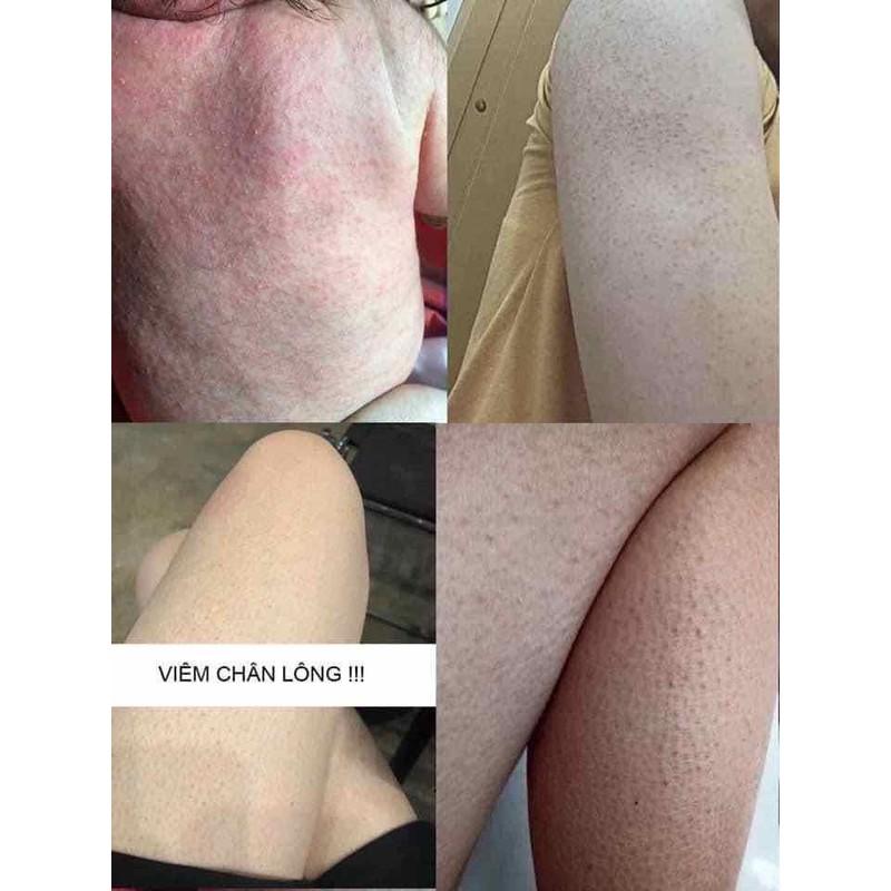 MUỐI TẮM THẢO MỘC, trị rôm xảy, viêm chân lông, hăm tã…. – 37645