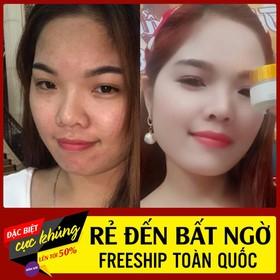 Hót Kem Face 5In1 Minh Lady Beauty - u02tCFjavFq1wkI37WDT