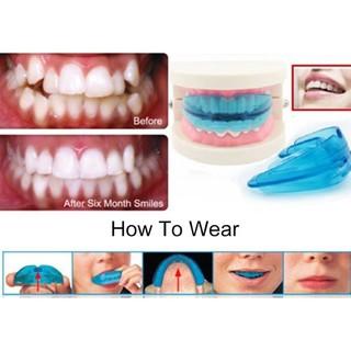 niềng răng cao cấp - GTDCV thumbnail