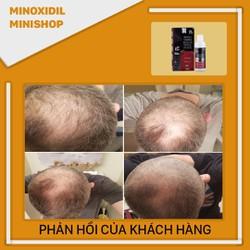 Thuốc mọc râu tóc Minoxidil & Finasteride 5 - Morr F5 [ĐƯỢC KIỂM HÀNG] 37382295