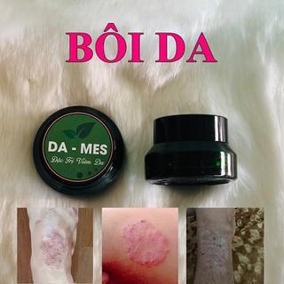 Kem bôi da DA-MES Viêm da, vẩy nến, á sừng, hắc lào, nấm da các loại - BOIDAMES thumbnail