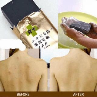for back-for back - MỤN LƯNG for backk thumbnail