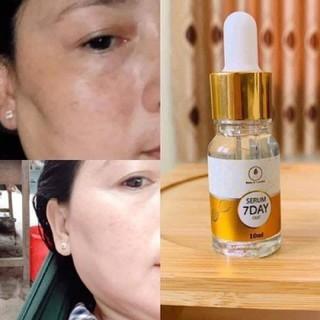 [FREE SHIP] COMBO 3 SERUM HUYẾT THANH TRUYỀN TRẮNG 7 DAYS OLIC - 2 serum 7 day thumbnail