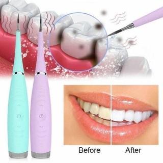 Máy lấy cao răng sonic pic - Làm trắng răng sonic pic [ĐƯỢC KIỂM HÀNG] 28799681 - 28799681 thumbnail