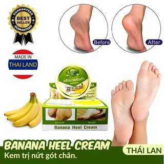 Kem nứt gót chân Banana Heel Cream- Kem ngăn ngừa nứt gót chân chuối - ktngc thumbnail