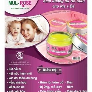 kem Mul rose 30g chính hãng - kem mul rose thumbnail